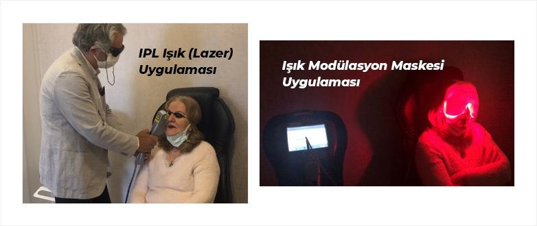 IPL Işık (Lazer) Uygulaması ve Maskesi