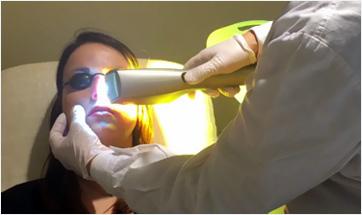 Birinci Aşama Ope Ipl Işık -Lazer Tedavisi