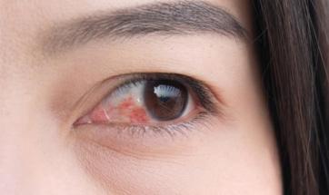 Göz Kızarıklığı