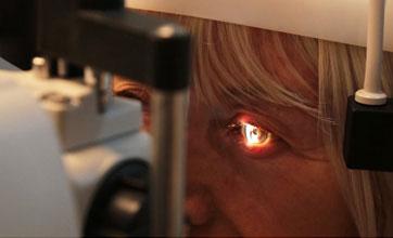 kataraktlı göz muayenesi