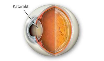 kataraktlı göz