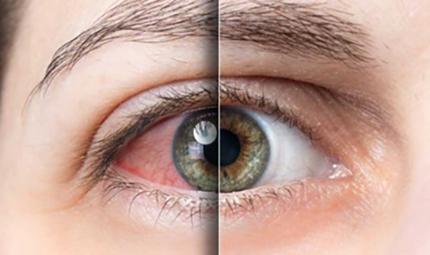En tehlikeli göz hastalıkları nelerdir?