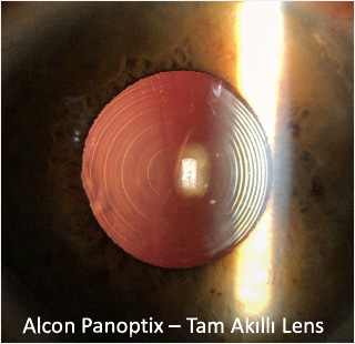 Tam Akıllı Lens